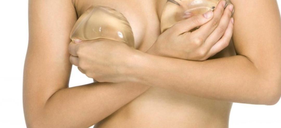 Prothèses mammaires : quelle taille choisir ?