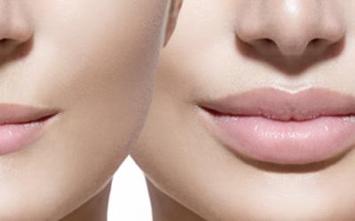 Augmentation des lèvres par acide hyaluronique : quelles sont les précautions à prendre ? Est-ce douloureux ?