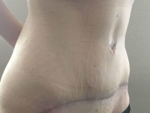 Photo après abdominoplastie