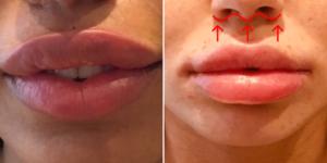 Chirurgie esthétique des lèvres - Exemples