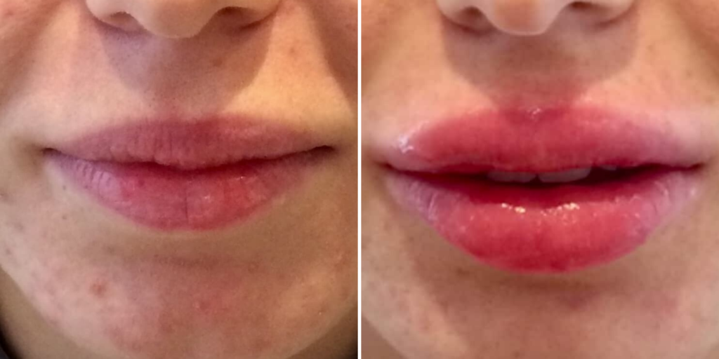 Chirurgie esthetique des lèvres de la bouche : avant / Après injection d'acide hyaluronique