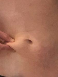 Avant/Après Cryolipolyse : photo après traitement